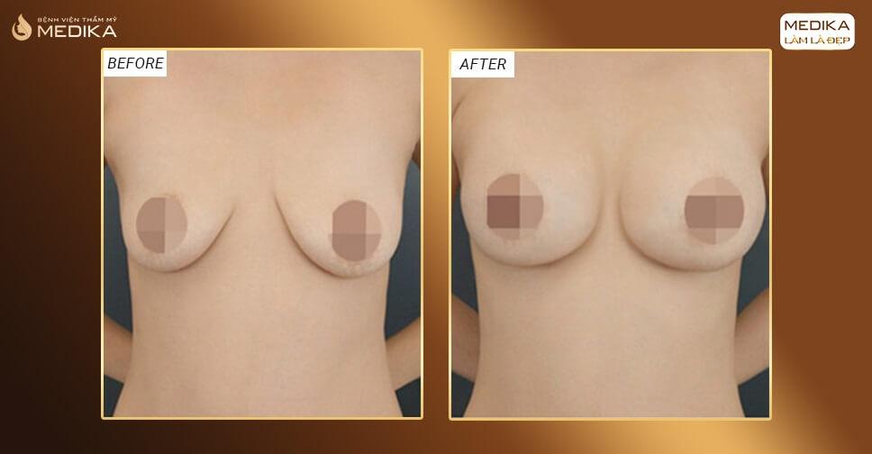 Nâng ngực chảy xệ có giữ được vĩnh viễn ở Chuyên gia nâng ngực?