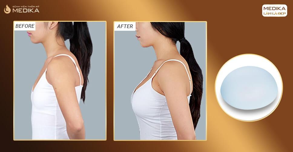 Thực hiện nâng ngực túi Nano có đau hay không ở Chuyên gia nâng ngực?