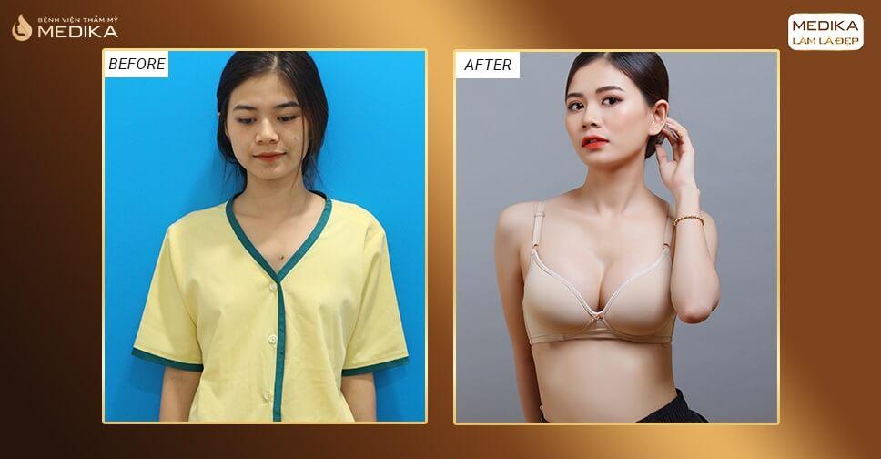 Nâng ngực đẹp cho cô nàng 9X bởi Chuyên gia nâng ngực