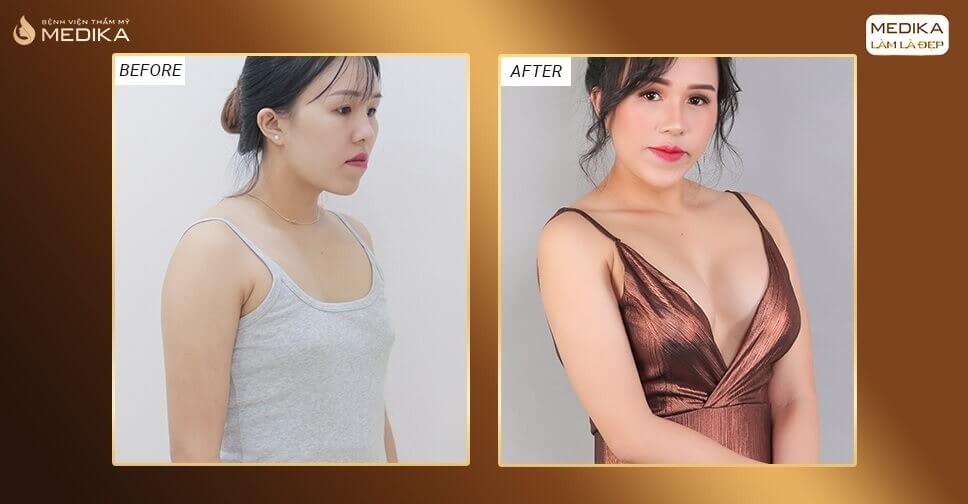 Túi Nano dòng túi được nhiều khách hàng chọn lựa thực hiện bởi Chuyên gia nâng ngực