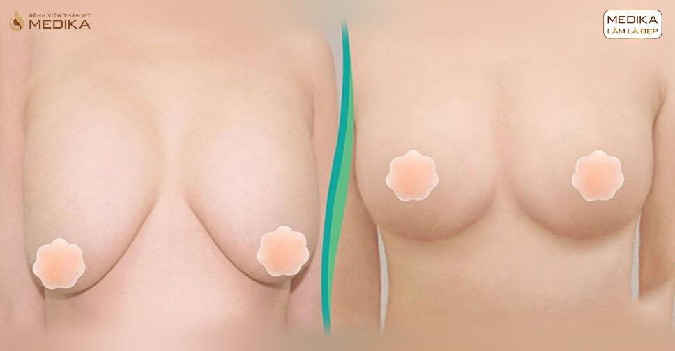 Chỉ sau 90 phút đã có ngay kết quả nâng ngực chảy xệ hoàn hảo bởi Chuyên gia nâng ngực