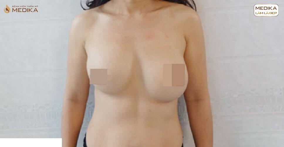 Ham giá rẻ nhiều chị em sập bẫy phẫu thuật ngực hỏng bởi Chuyên gia nâng ngực