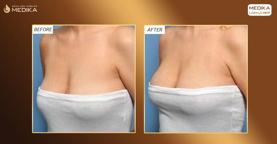 Nâng ngực chảy xệ đẹp ngay sau 120 phút bởi Chuyên gia nâng ngực