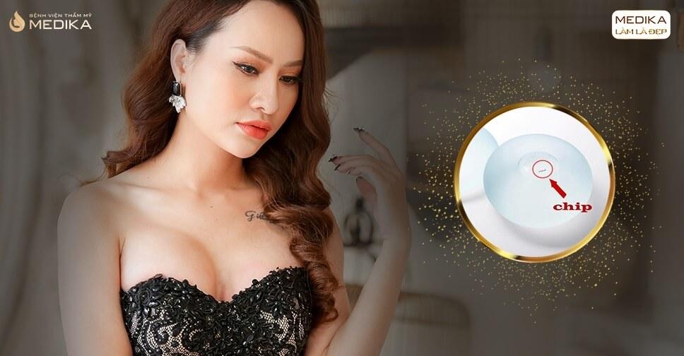 Nhiều khách hàng lựa chọn túi Motiva bởi Chuyên gia nâng ngực