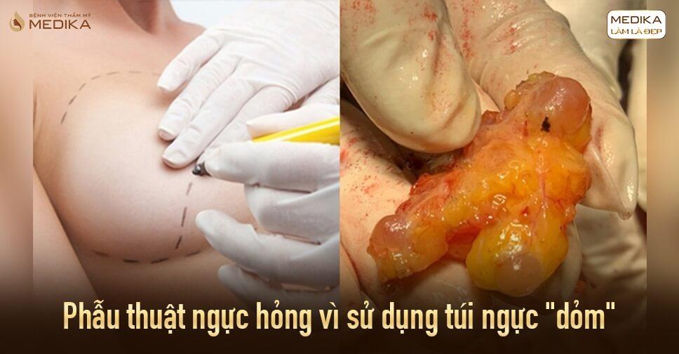 Phẫu thuật ngực hỏng cuối năm rất nhiều bởi Chuyên gia nâng ngực