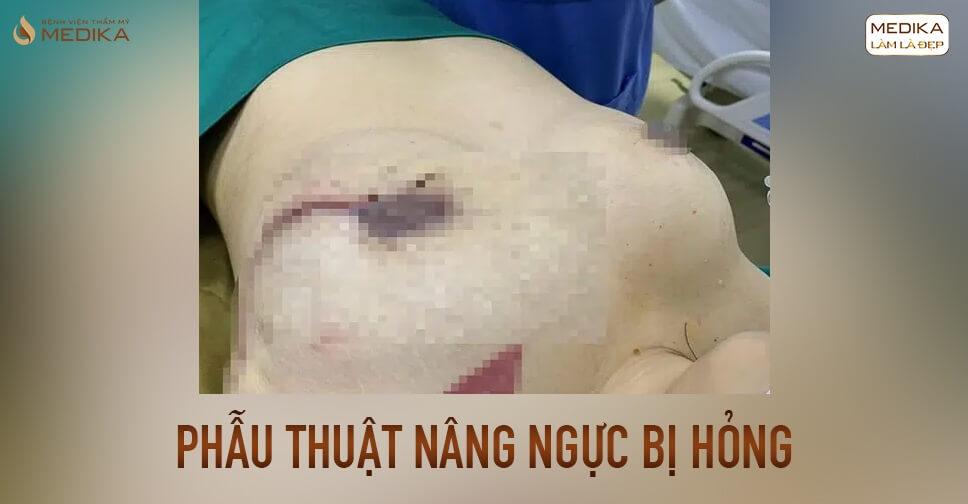 Phẫu thuật ngực hỏng do bóc tách khoang ngực sai bởi Chuyên gia nâng ngực