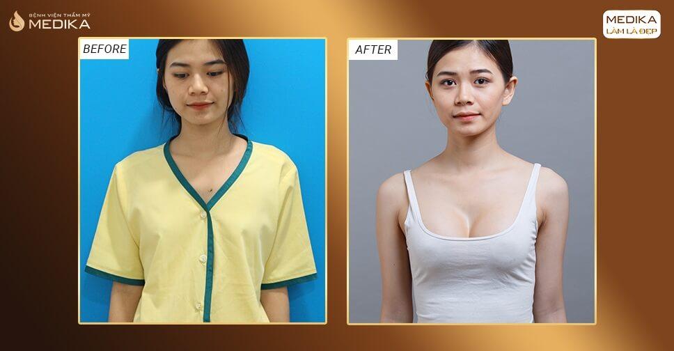 Phẫu thuật ngực hỏng do bóc tách khoang ngực sai từ Chuyên gia nâng ngực