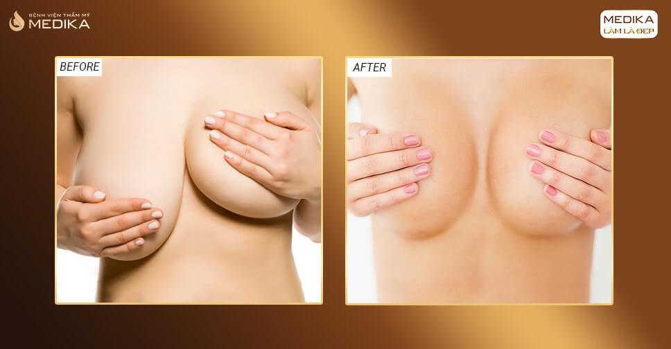 Phẫu thuật ngực hỏng lỗi do ai bởi Chuyên gia nâng ngực?