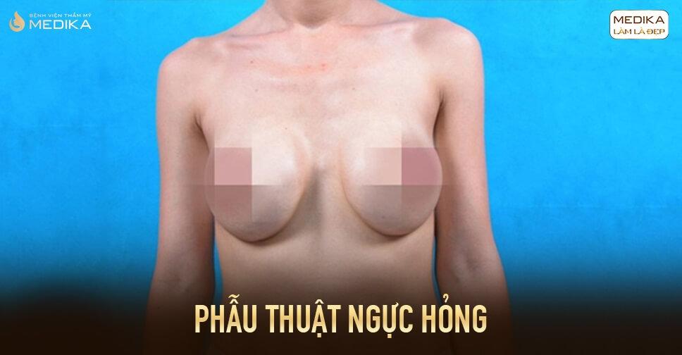 Phẫu thuật ngực hỏng rồi sửa lại ở đâu bởi Chuyên gia nâng ngực?