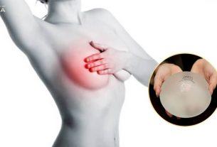 Phẫu thuật ngực hỏng trách ai bây giờ từ Chuyên gia nâng ngực
