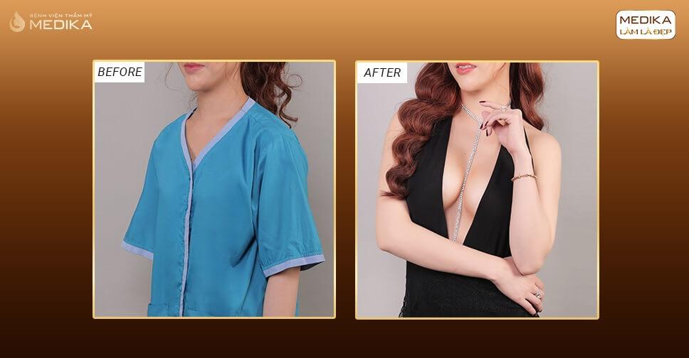 Túi Nano Chip dòng túi lợi hại bởi Chuyên gia nâng ngực