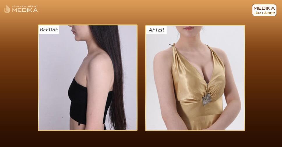 Túi Nano Chip dòng túi ngực được nhiều khách hàng quan tâm bởi Chuyên gia nâng ngực