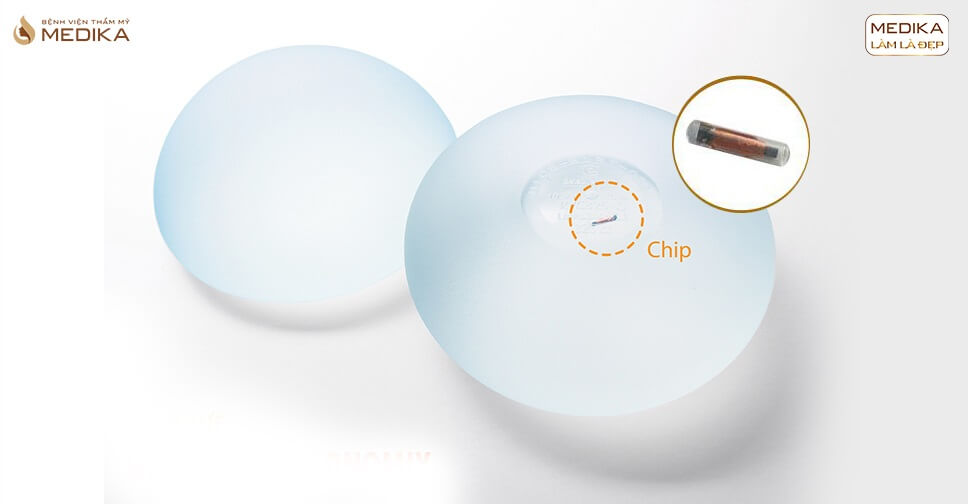 Túi Nano Chip dòng túi ngực được nhiều khách hàng quan tâm từ Chuyên gia nâng ngực