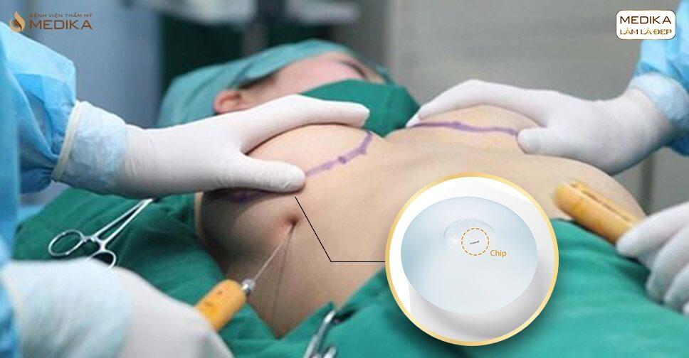 Túi Nano Chip thỏa mãn được tiêu chí của chị em bởi Chuyên gia nâng ngực
