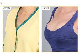 Túi Motiva hãng túi chuyên sản xuất túi nâng ngực thông minh từ Bệnh viện thẩm mỹ MEDIKA