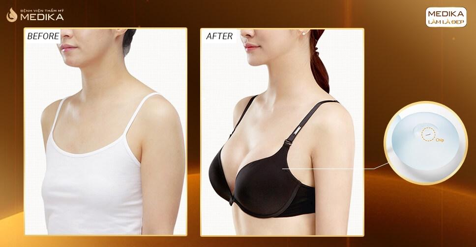 Túi Nano Chip lựa chọn của nhiều hot girl từ Chuyên gia nâng ngực
