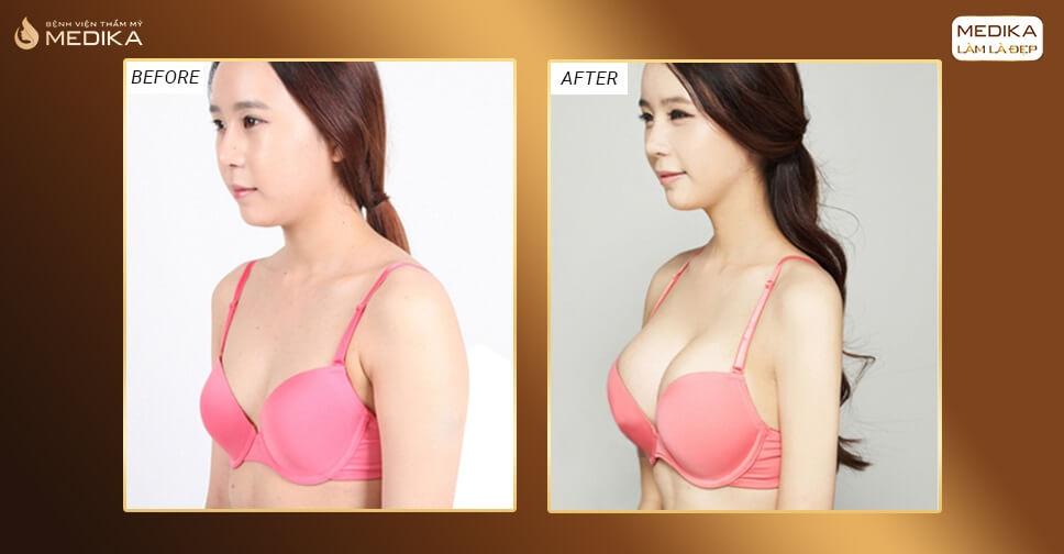 Tìm hiểu chính sách nâng ngực an toàn ở Chuyengianangnguc.vn